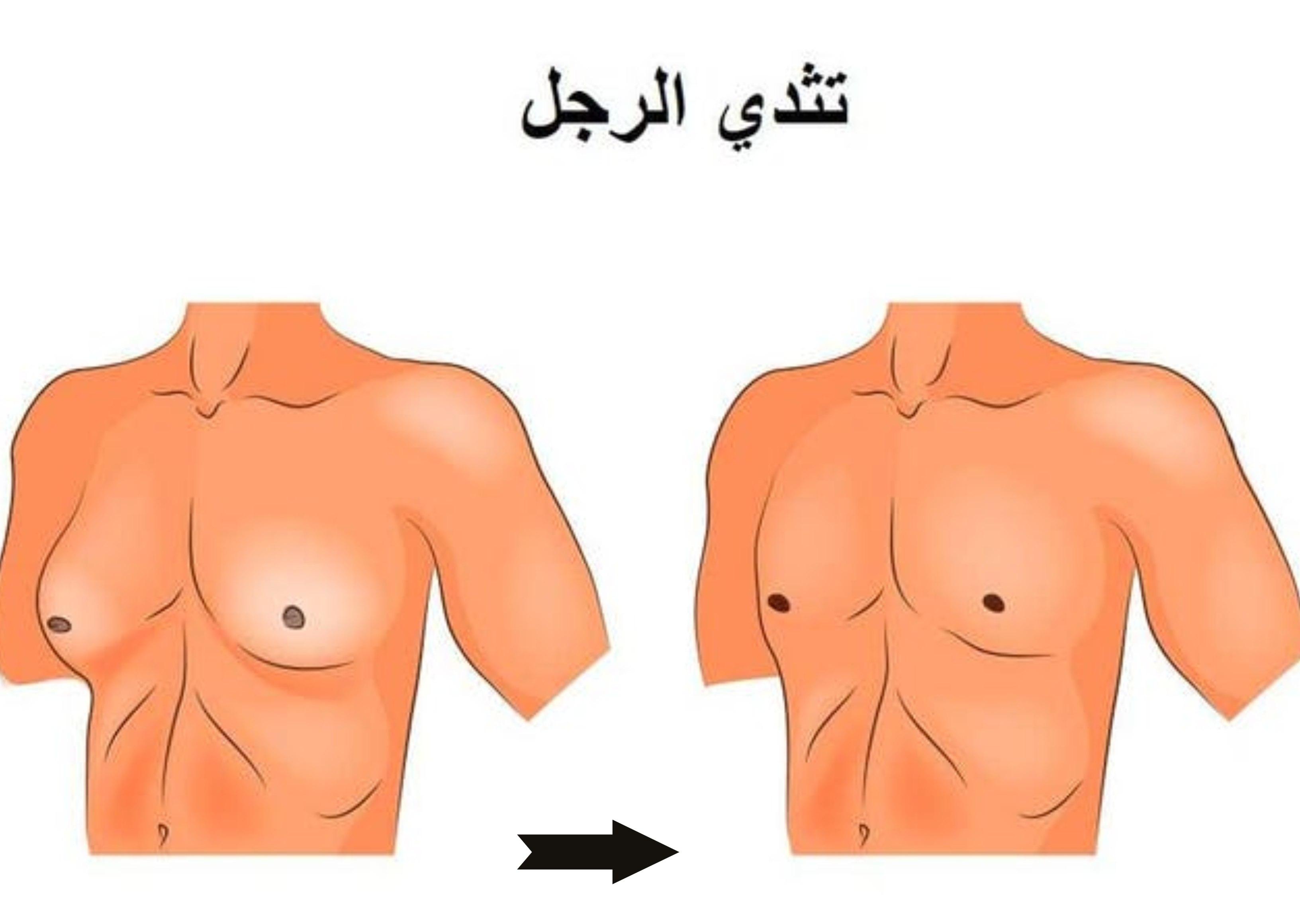 علاج التثدي للرجال بدون جراحة3